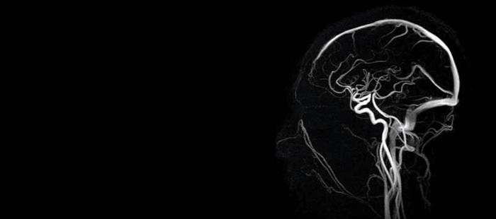 Записаться на МРТ сосудов головного мозга в Москве